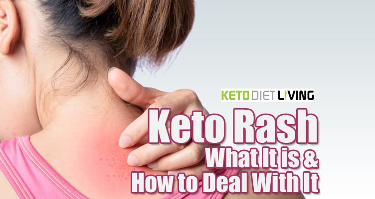Keto Rash: What It is & How to Deal With It
