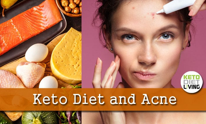 The Keto Acne Connection